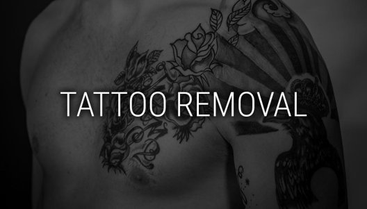 Laser Tattoo Removal Image